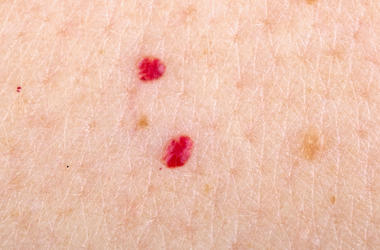 Red Dots, Skin, Blood, Cherry Angioma