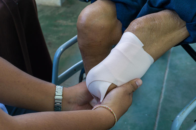Elastic Bandages, Amputed Leg