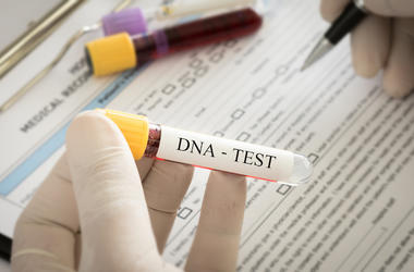 DNA Test, Genetics, Forensic Science, Scientist, Doctor, Gloves