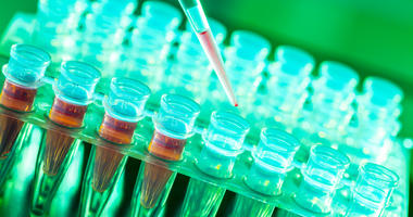 Laboratory research of cancer diseases, rack with RNA samples