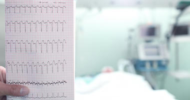 ECG with a heart attack in hospital ward