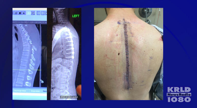 Braiden Williams Surgery