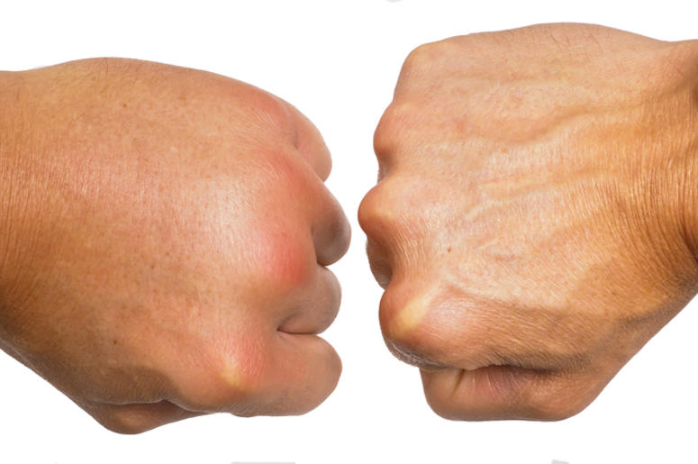 can crack your knuckles