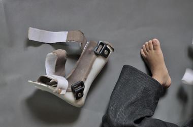 Child, Foot, Cerebral Palsy, Orthopedic Shoe