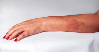 Redness from painful burn on a woman's hand.