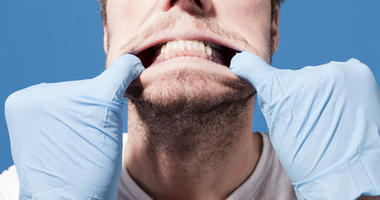 Dental-Gums