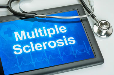 multiple sclerosis.