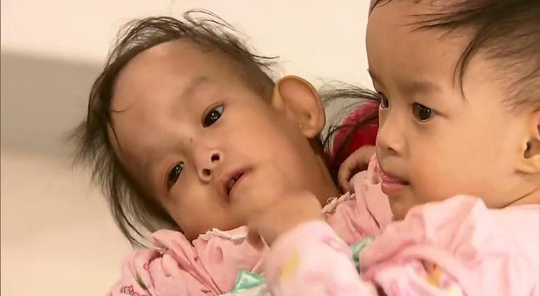 Bhutanese twins Dawa and Nima