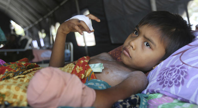 In this Wednesday, Oct. 3, 2018, photo, a child recovers after his left hand was amputated after being injured in the massive earthquake in Palu, Central Sulawesi Indonesia.
