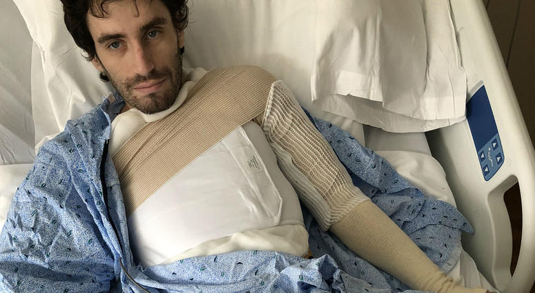 Ray Mullen has third-degree burns on 30 percent of his body
