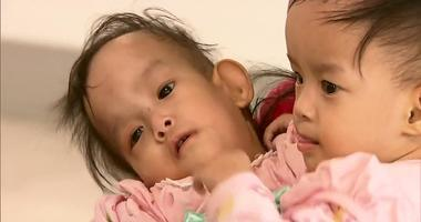 Bhutanese twins Dawa and Nima
