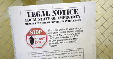 This March 27, 2019 file photo shows a sign explaining the local state of emergency because of a measles outbreak at the Rockland County Health Department in Pomona, N.Y.