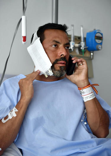 REMOVES WEIGHT OF BULL - Jaime Alvarez from Santa Clara County, California, sits in a hospital in Pamplona, northern Spain, Monday, July 8, 2019 after being gored by a bull Sunday at the San Fermin Festival. (AP Photo/Alvaro Barrientos)