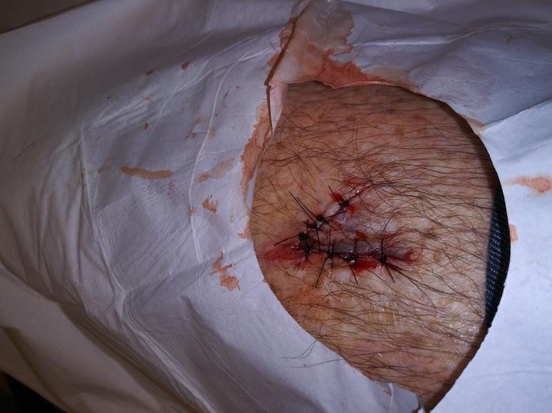 WARNING: GRAPHIC PHOTOS OF BUBBA'S INJURED LEG  VIEW AT YOUR