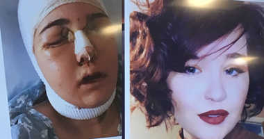 Nicole Sincavage before and after surgery