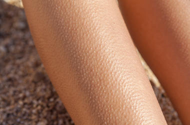 Goosebumps on arm