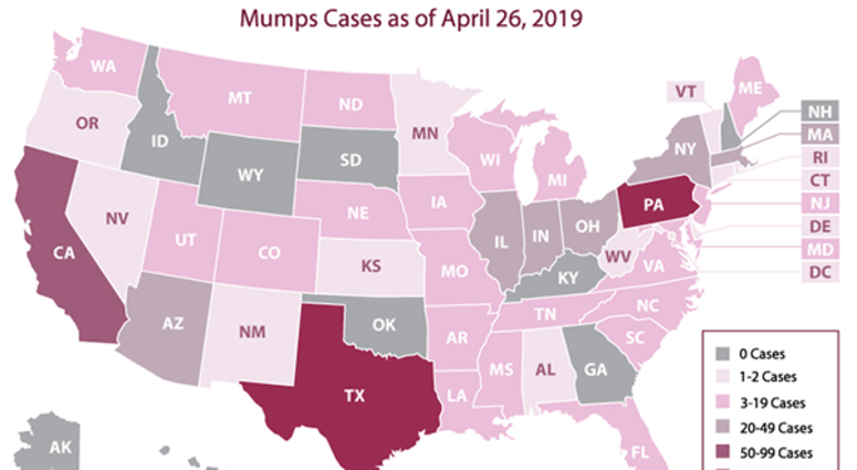 mumps cases map CDC