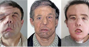 face transplant AP